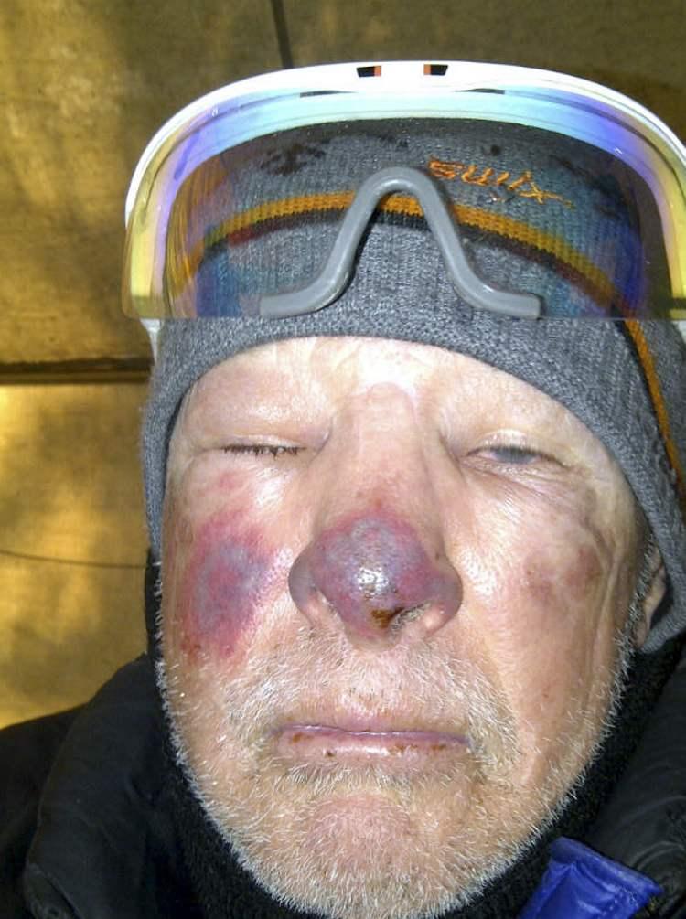 Купероз на лице причины лечение профилактика